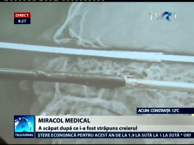 Miracol medical în Brazilia